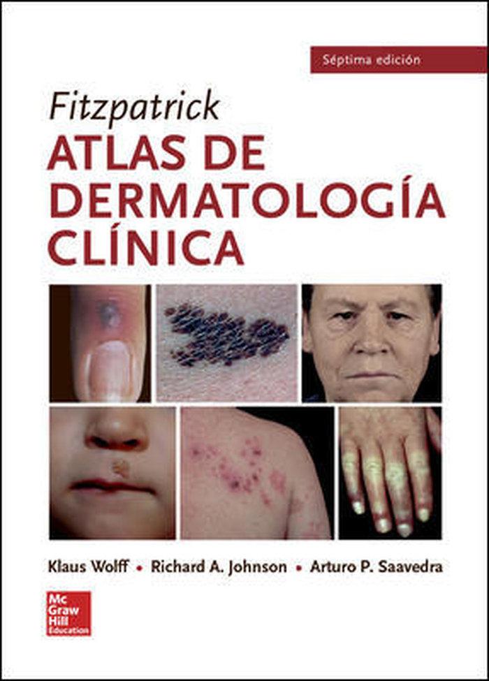 Bl fitzpatrick atlas de dermatologia clinica