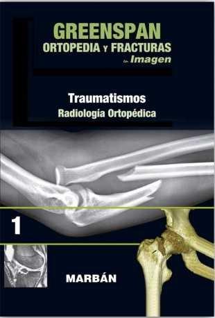Ortopedia y fracturas en imagen (vol1): traumatismos