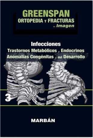 Ortopedia y fracturas en imagenes(vol3): infecciones. trasto