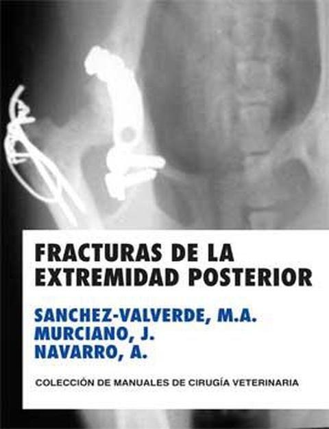 Fracturas de la extremidad posterior