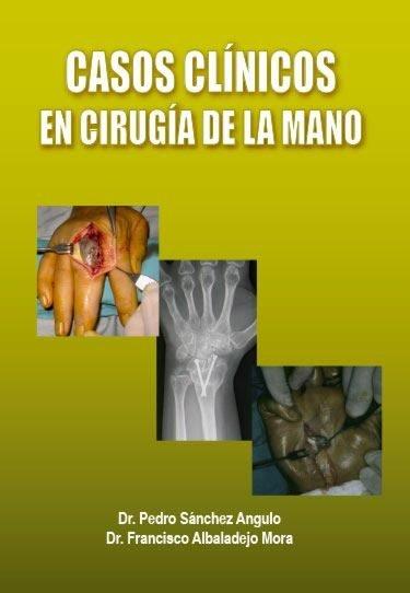 Casos clinicos en cirugia de la mano