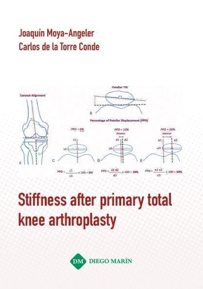 Stiffness after primary total knee arthroplasty