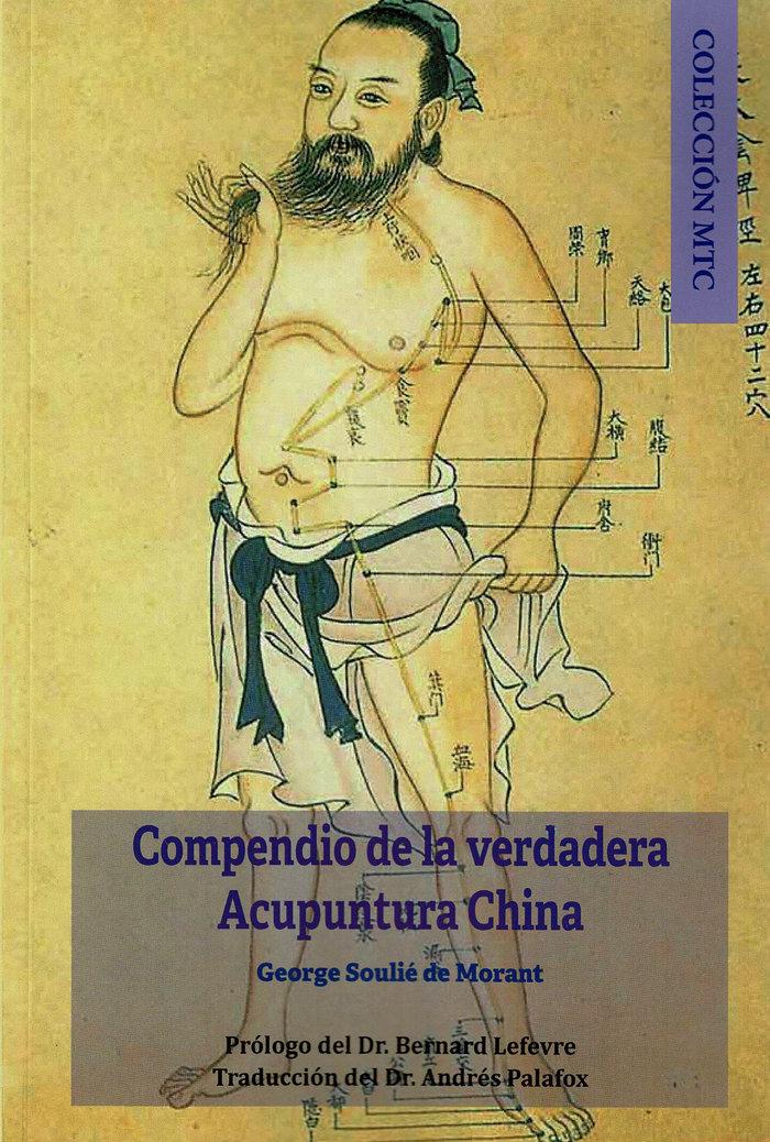 Compendio de la verdadera acupuntura china