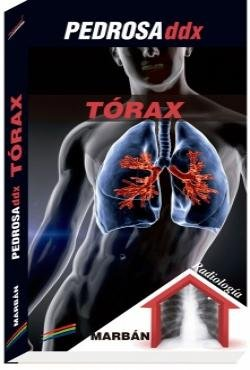 Pedrosa ddx torax