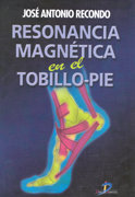 Resonancia magnetica en el tobillo-pie
