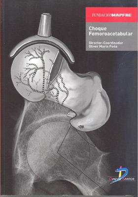 Choque femoroacetabular