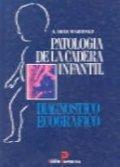 Patologia de la cadera infantil diagnostico ecogra.