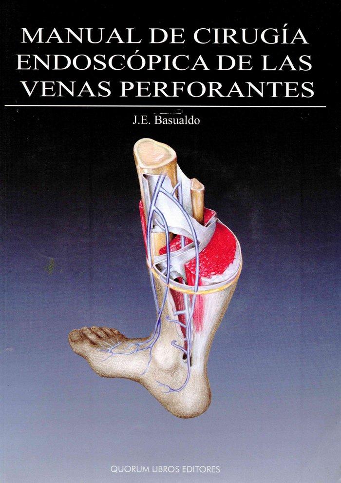 Manual cirugia endoscopica de las venas perforantes