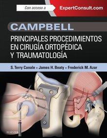 Campbell. principales procedimientos en cirugia ortopedica y