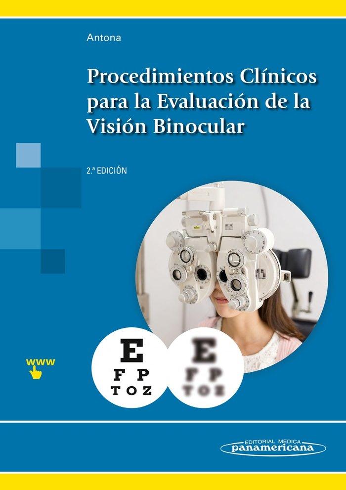 Procedimientos clinicos evaluacion de la vision binocular