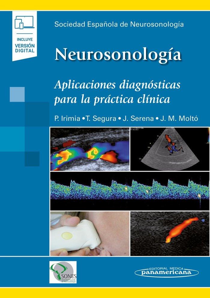 Neurosonologia aplicaciones diagnosticas para practica clin