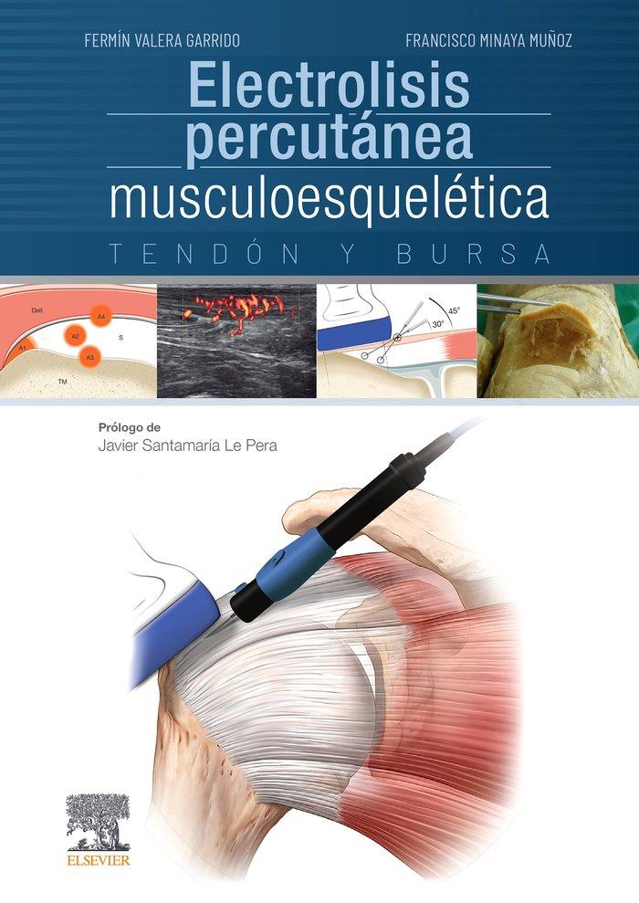 Electrolisis percutanea musculoesqueletica. tendon y bursa