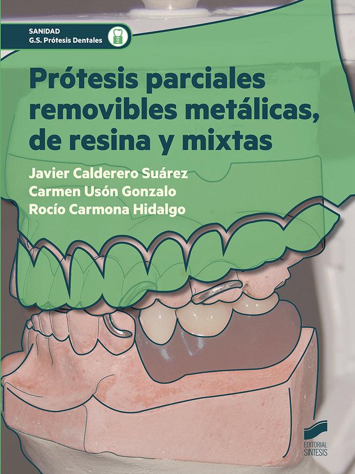 Protesis parciales removibles metalicas, de resina y mixtas