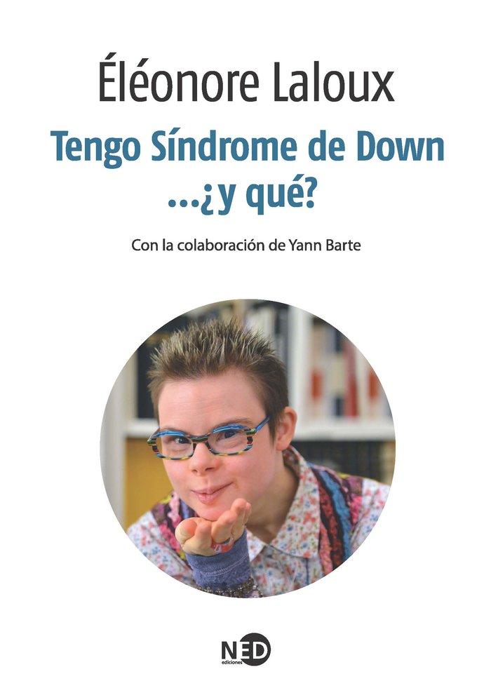 Tengo sindrome de down y que