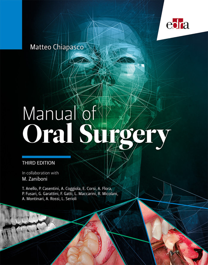 Manual of oral surgery 3'ed
