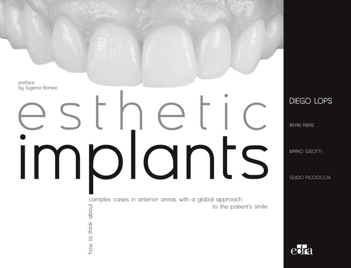 Esthetic implants how to think about complex cases in anteri