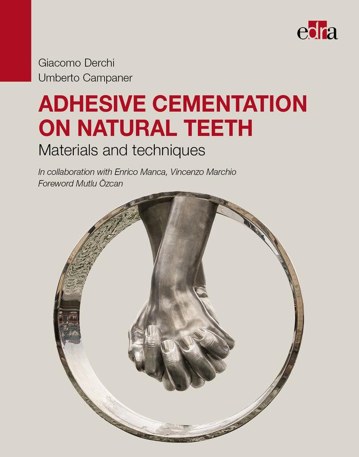 Adhesive cementation on natural teeth mat